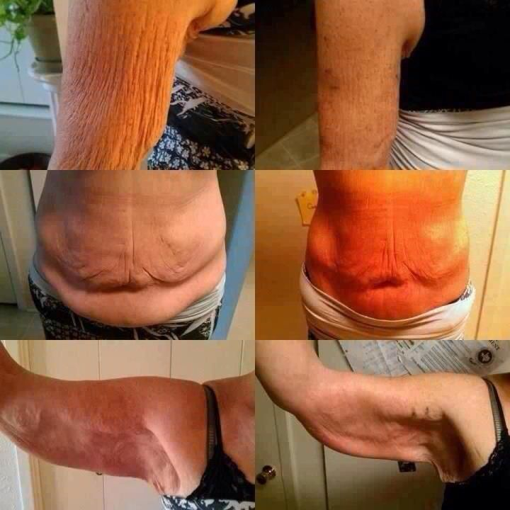 Check out these It Works body wraps before and after images http://laura10.myitworks.com