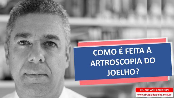 www.cirurgiadejoelho.med.br / O DR. ADRIANO KARPSTEIN, médico ortopedista especialista em Cirurgia de Joelho e Medicina Esportiva, explica COMO É FEITA A ARTROSCOPIA DO JOELHO. / #joelho #cirurgiadejoelho