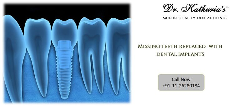 Missing Teeth Replaced with #DentalImplants at Dr. Kathuria's Multispeciality Dental Clinic