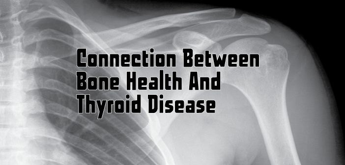 Awareness of the association between excessive thyroid hormone and osteoporosis, bone health and thyroid disease. Could this be you?  Did you know your thyroid can affect your bones??? Ƹ̵̡Ӝ̵̨̄Ʒ  Learn more about bone density and what to ask for ▼  http://thyroidnation.com/connection-bone-health-thyroid-disease/  #Thyroid #Osteoporosis