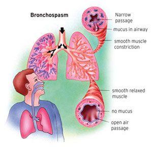 diagram of ashtma bronchospasm diagram | health stuff | childhood asthma ... diagram of parts of an inhaler