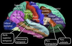 Lateral surface of cerebral cortex - gyri.png