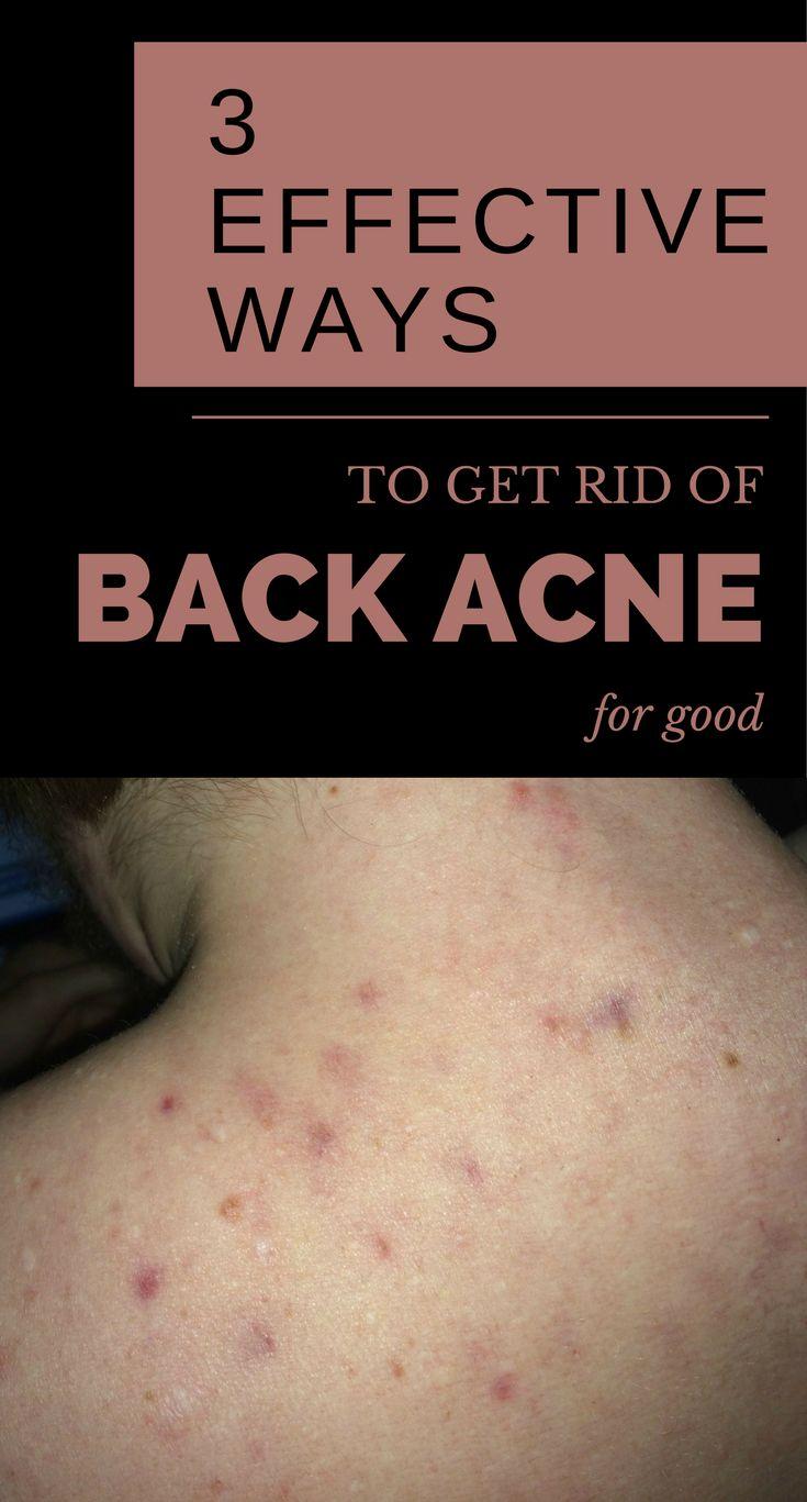 3 effektive Wege, um wieder zurück Akne für immer loszuwerden