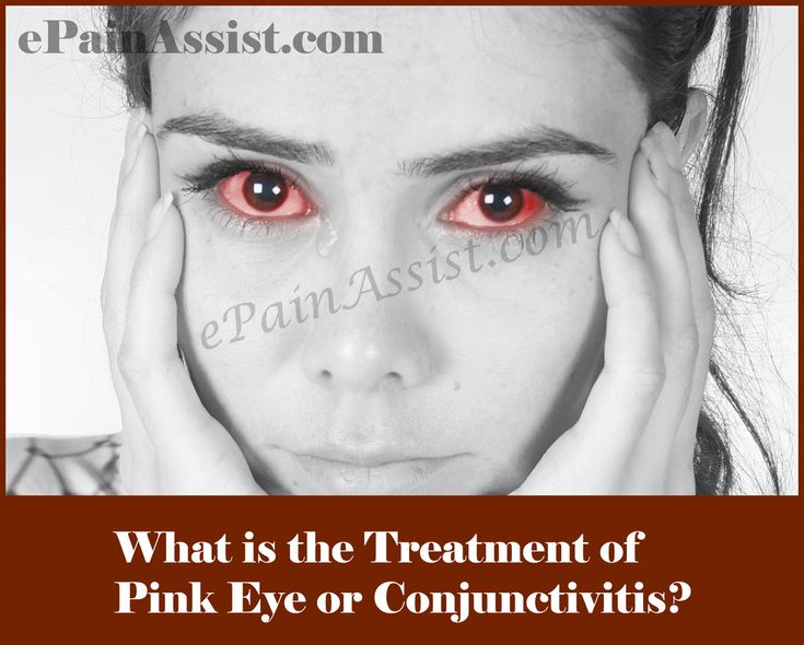 Pink Eye or Conjunctivitis: Symptoms, Causes, Treatment-Bacterial, Viral, Allergic