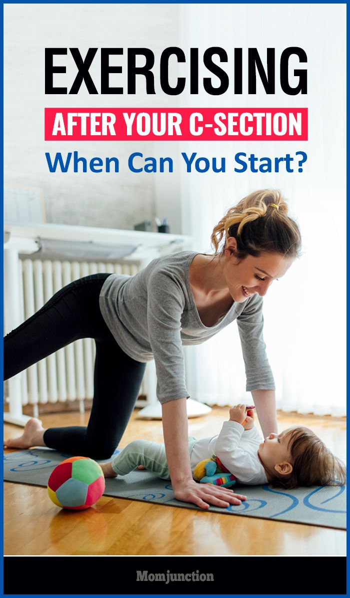 Did you have a cesarean delivery & are wondering when you can work out to get back in shape? Read to know when can you start doing exercises after C section