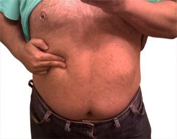 Read more about Symptoms of Gallstones http://welcomecure.com/Healthcare/Gallstones/Gallstones-Symptoms
