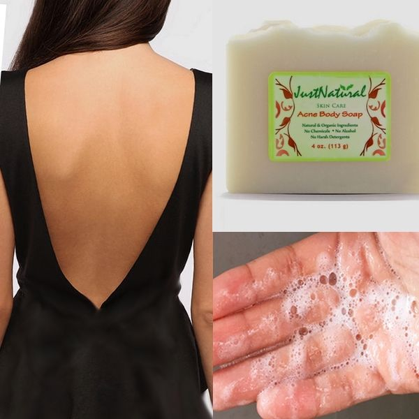 Back acne pimples treatment. One reason that your acne returns may be attributed to your skin having been suppressed by the chemical agents in the soap and then having a reaction against it. This can lead to more acne breakouts. This soap soothe red inflamed or itchy skin and helps protect sensitive acne prone skin.