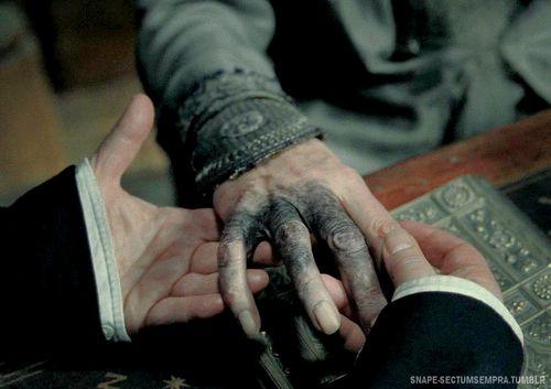Severus Snape´s, Dumbledore's hands