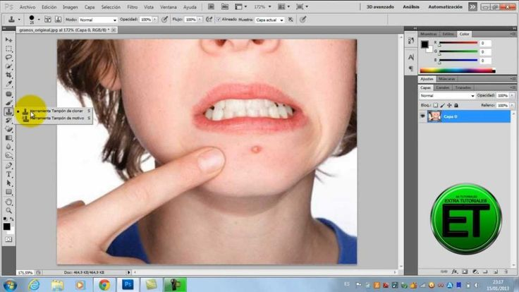 Como quitar granos en Photoshop (HD) - http://solucionparaelacne.org/blog/como-quitar-granos-en-photoshop-hd/