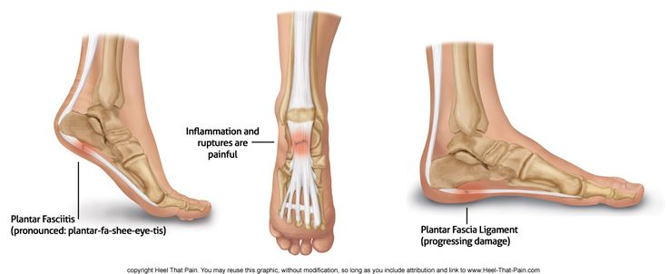 Plantar Fasciitis, Heel Spurs, Heel Pain ~ Welcome to the Plantar Fasciitis organization.