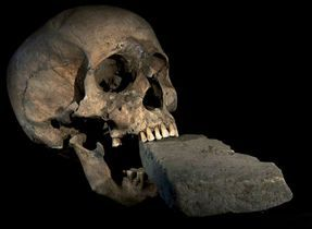 The stone keeps her from chewing.Plague Victim, Los Vampiro, Mass Plague, Human Bones, National Geographic, Bricks Stuck, Articles Attached, Geographic Vampires, Venice Videos