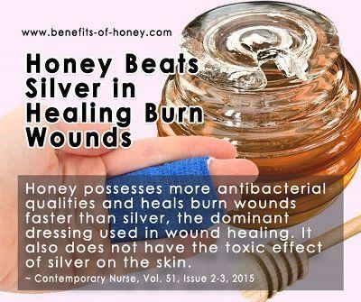 Honey beats silver in healing burn wounds.