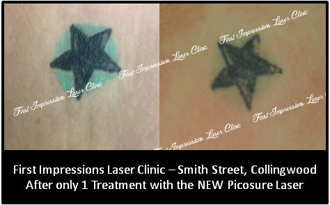 Woo Hoo for the PicoSure which is obliterating once impossible greens and blues.... this is one very happy First Impressions client who has had only ONE treatment and already the blue circle surrounding the star is gone!