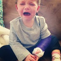 Tips for babies with a broken arm