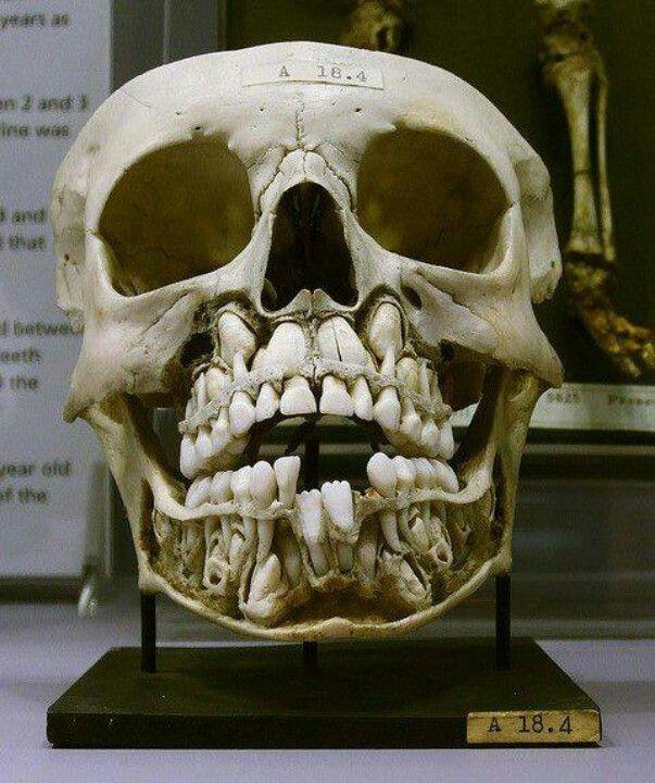 Child's skull before losing baby teeth.A newborn has all