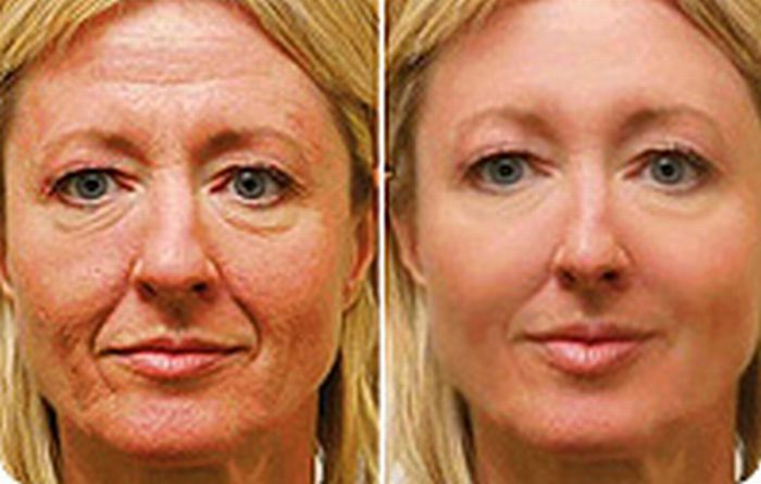 Chinese Facelift Method: Removing Lines, Fading Furrows And Raising Flabby Tissue With Facial Aerobics