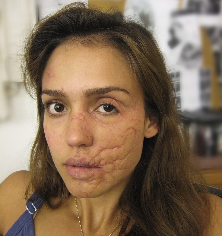 """Mi piace"": 8,937, commenti: 125 - Richard Redlefsen (@richardredlefsen) su Instagram: ""Facial scar makeup on Jessica Alba from The Killer Inside Me. Prosthetics provided by Alterian Inc.…"""