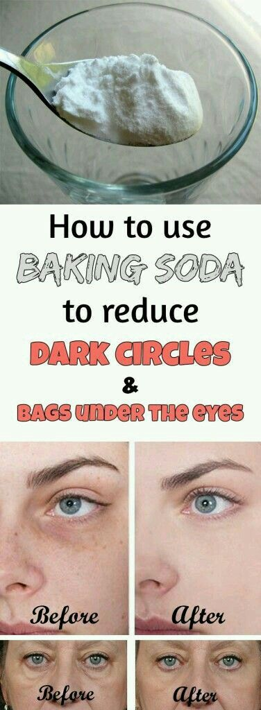 1. Add a teaspoon of baking in a glass of hot water or tea and mix well. 2. Soak two cotton pads in this solution and place them under the eyes. 3. Leave on for 10-15 minutes, then rinse your face and apply a moisturizer.