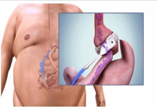 Rose Medical Center | Band Over Bypass  #beinspired #weightlosssurgery #healthy #inspiration