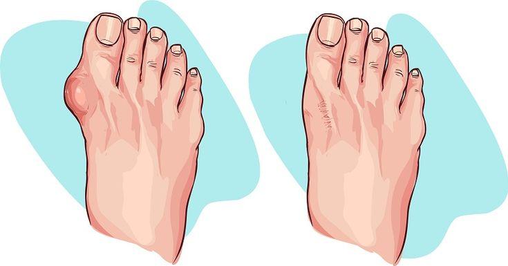 Εξαφανίστε το Κότσι από τα πόδια σας, με αυτούς τους 5 απλούς τρόπους!