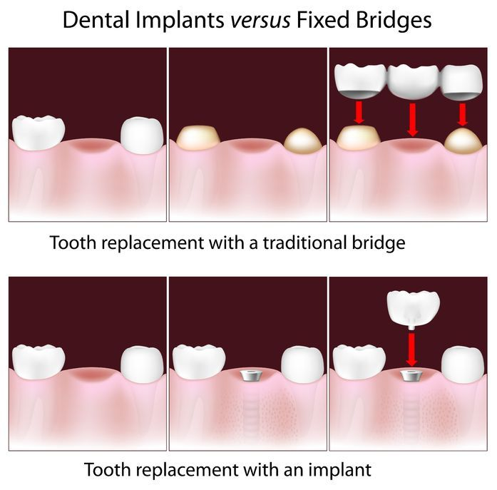 Dental Bridge Arlington, Replace Your Broken Down OR Missing Teeth. Free Consultation. Available financing.