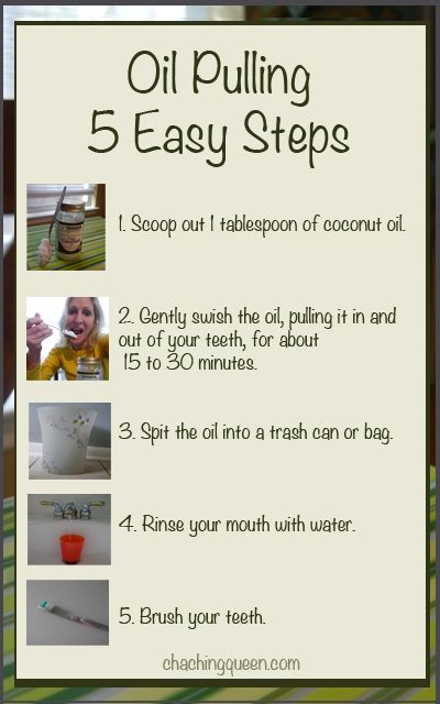 5 Easy Steps to Oil Pulling. What is oil pulling? Why coconut oil? How do I do this oil pulling thing? Healthy Living, Alternative Health, Natural Remedies