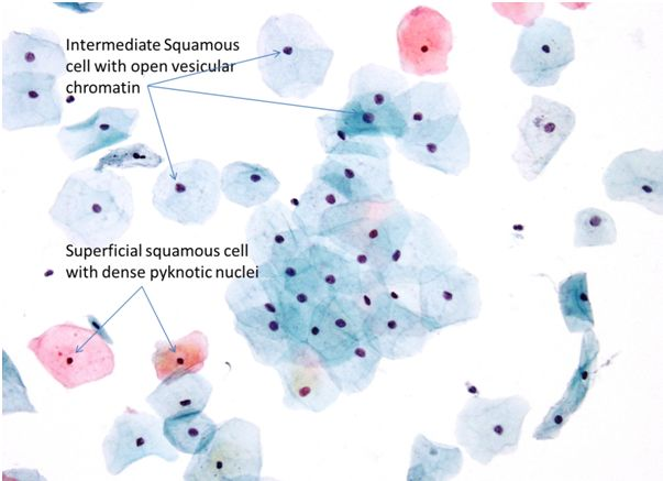 9b. Normal cytology and benign reactive changes | Eurocytology