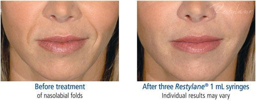 restylane-before-and-after-3 #LipArtTutorial