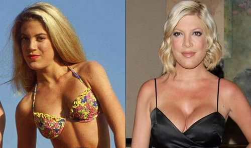 15 Good Looking Celebrities Who Destroyed Themselves with Plastic Surgery -- tori spelling