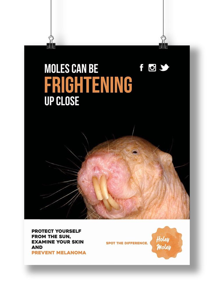 Holey Moley: Poster for a Melanoma Awareness Campign designed to shock an audience to create awareness