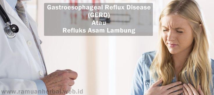 Obat Herbal GERD Di Apotik  GERD merupakan singkatan dari Gastroesophageal Reflux Disease yaitu penyakit asam lambung yang sudah sangat umum dikalangan masyarakat. Pada kondisi ini, asam lambung akan naik menuju esofagus/kerongkongan yang menyebabkan nyeri pada ulu hati atau sensasi terbakar di dada.  http://www.ramuanherbal.web.id/obat-herbal-gerd-di-apotik/