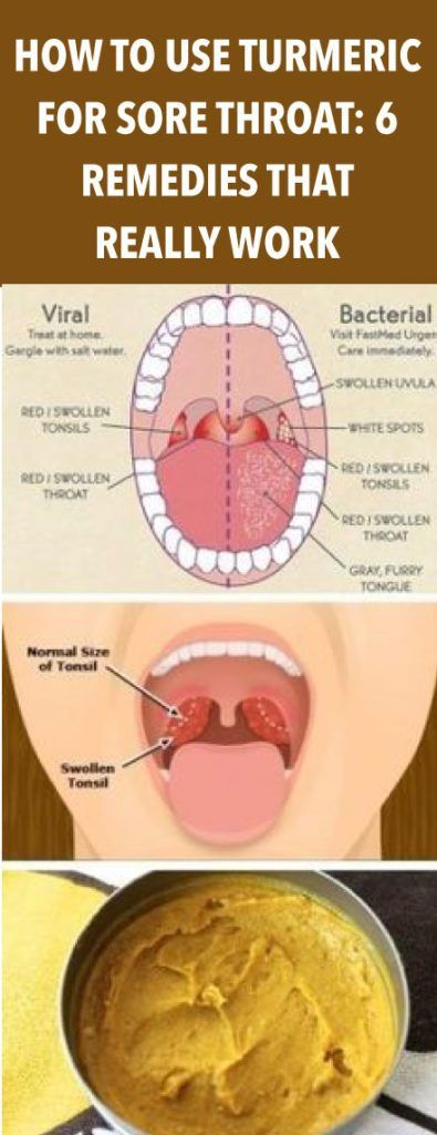 HOW TO USE TURMERIC FOR SORE THROAT: 6 REMEDIES THAT ...