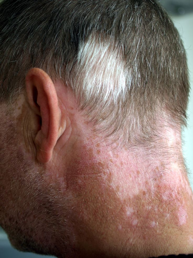 It is time to stop being upset over your loss of hair and time to start taking action. Take the advice from http://www.bestforhairregrowth.com and check out how to get your head of hair back!