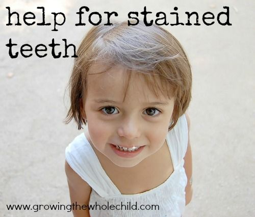 help for stained teeth