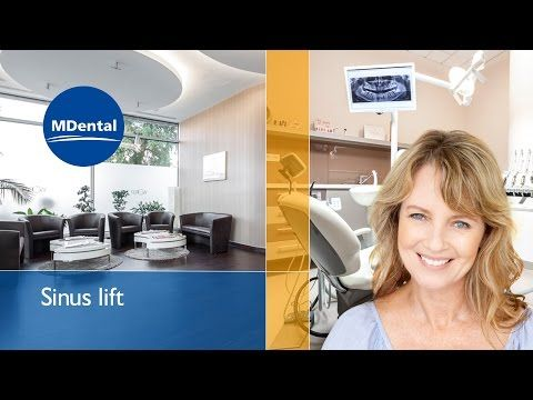 Painless and professional oral surgery abroad at MDental Clinic Hungary in the heart of Budapest. See the video to understand the procedure of sinus lift (also known as sinus elevation) Provided by Geistlich Biomaterials
