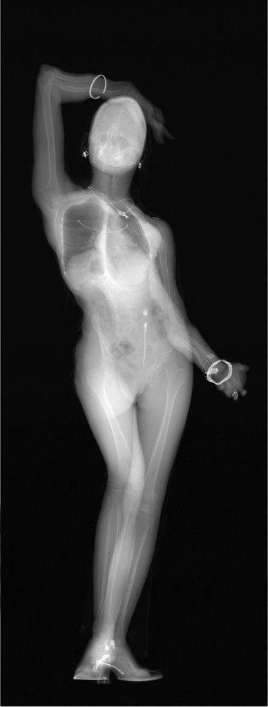 X-Ray Art by Benedetta Bonichi