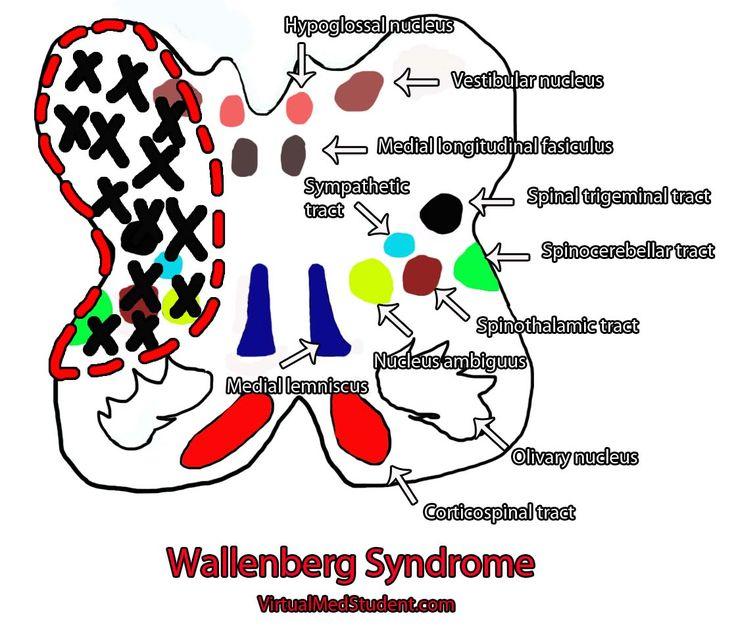 Extrem VirtualMedStudent.com || Lateral Medulla Stroke (Wallenberg's  BO72