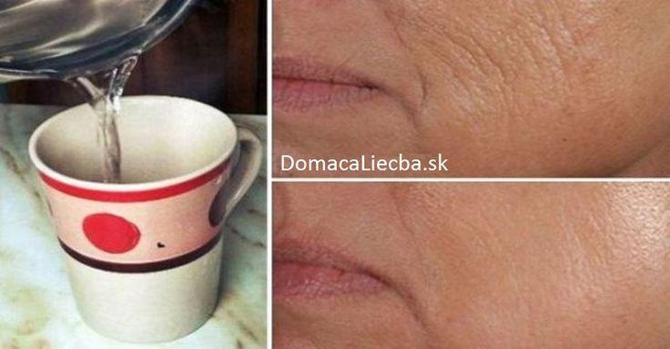 Dáte si ráno po zobudení kávu alebo čaj? Nie je to zlé, no oveľa lepší efekt na vaše telo bude mať pohár obyčajnej teplej vody. Pozrite sa prečo.