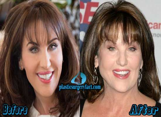 Robin Mcgraw Plastic Surgery Before And After Facelift
