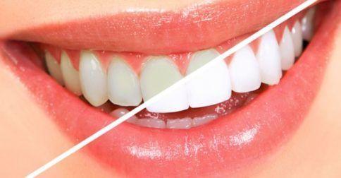 Λεύκανση δοντιών: H δημοφιλέστερη μέθοδος αισθητικής βελτίωσης της στοματικής κοιλότητας: http://biologikaorganikaproionta.com/health/234895/