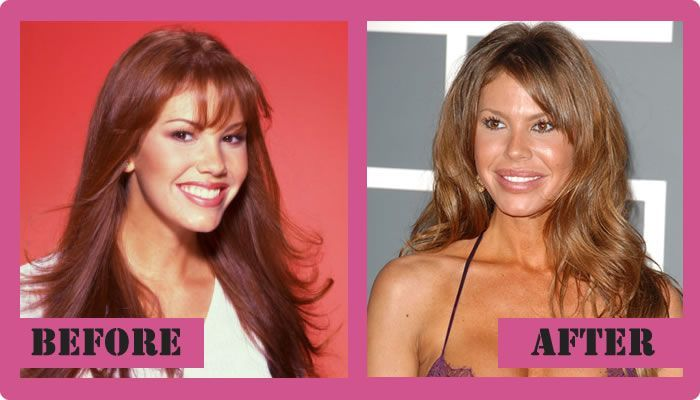 Nikki Cox Plastic Surgery Before And After Nikki Cox Plastic Surgery
