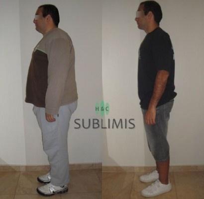 Foto de antes y después de una cirugía bariátrica