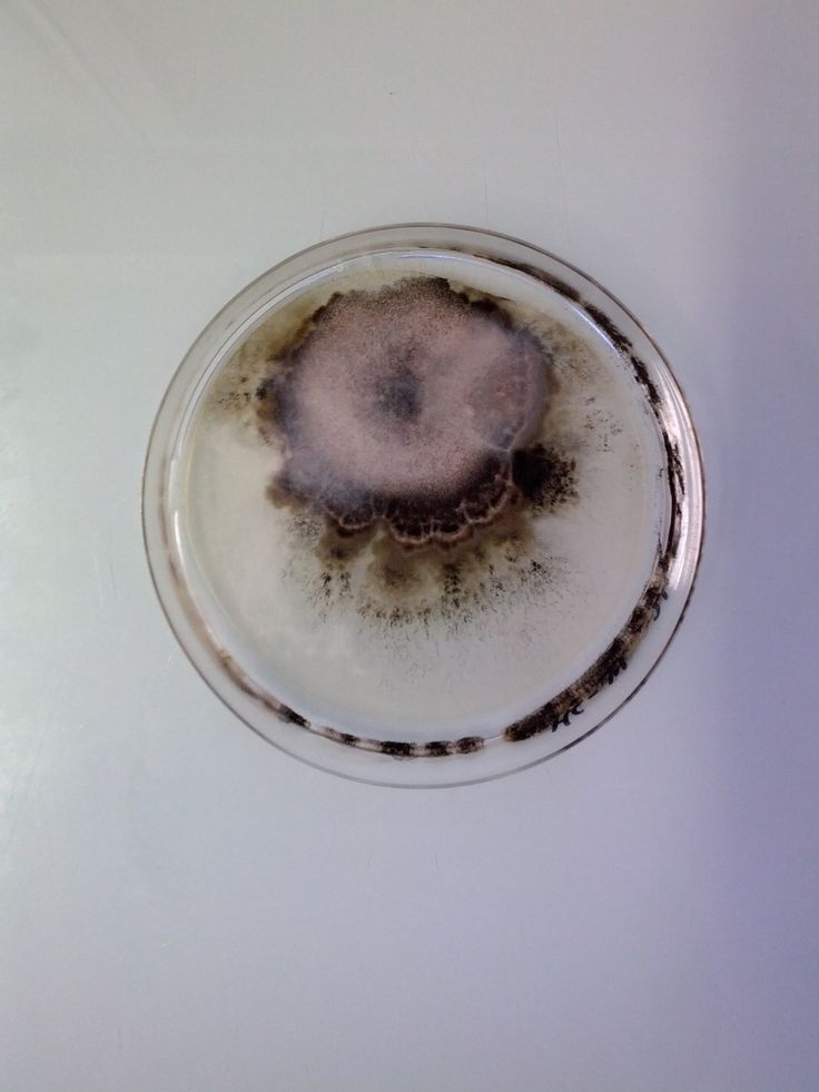 Antoine Bridier-Nahmias . magical contamination