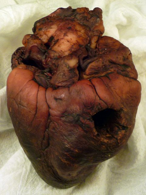 The mummified heart is said to be that of vampire Auguste Delagrance, responsible for the deaths of more than forty people back in the 1900, a period of vampirism in the USA. When identified, Delagrance was hunted down by a Romano Catholic priest and a Voodoo Hougan, and and destroyed in 1912.      It can be your own, if you buy it from E-bay!