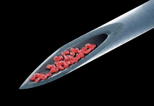 blood in the bevel of a needle, under electron microscope