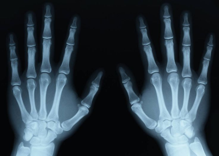 Software to automatically outline bones in x-rays - http://www.orthospinenews.com/software-to-automatically-outline-bones-in-x-rays