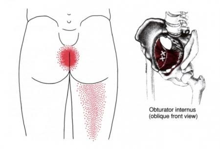 Anal Pain and Painful Bowel Movements - Primary Symptoms @ Sphincter Ani