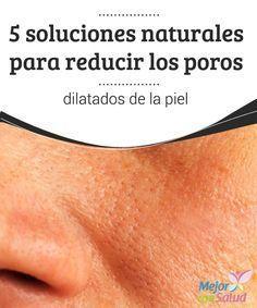 5 soluciones naturales para reducir los poros dilatados de la piel | remedios caseros | Pinterest | Beauty, Beauty hacks and Skin Care