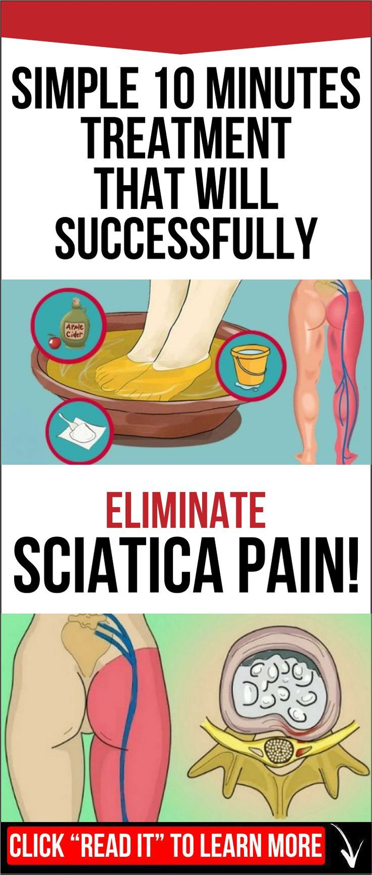 SIMPLE 10 MINUTES TREATMENT THAT WILL SUCCESSFULLY ELIMINATE SCIATICA PAIN!
