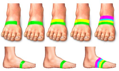 taping the foot to help with shin splint pain